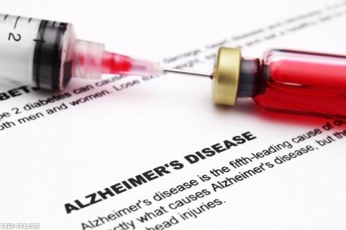 Alzheimerdisease_119022088.jpg