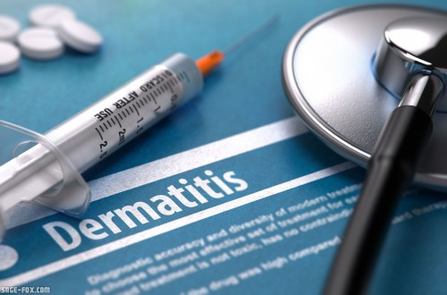 Dermatitis_331205897.jpg